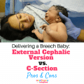 External Cephalic Version vs a C-section Pros and Cons