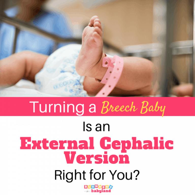 Turning a Breech Baby: External Cephalic Version