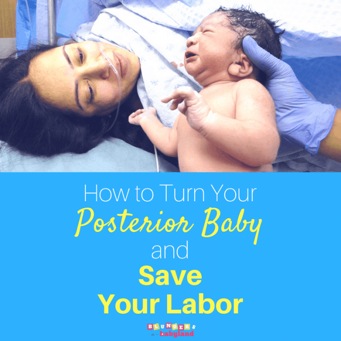 How to Turn a Posterior Baby for an Easier Labor