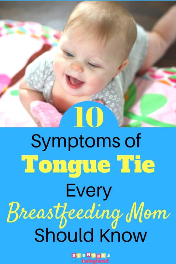 10 Symptoms of Tongue Tie Every Breastfeeding Mom Should Know