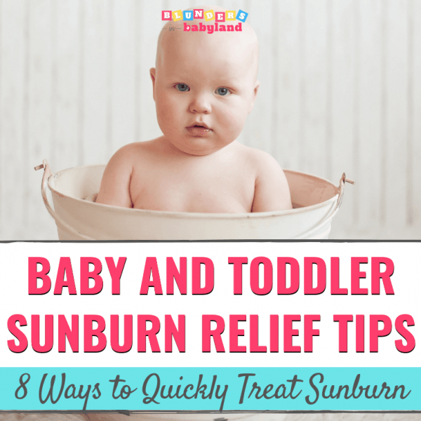 Baby and Toddler Sunburn Relief Tips